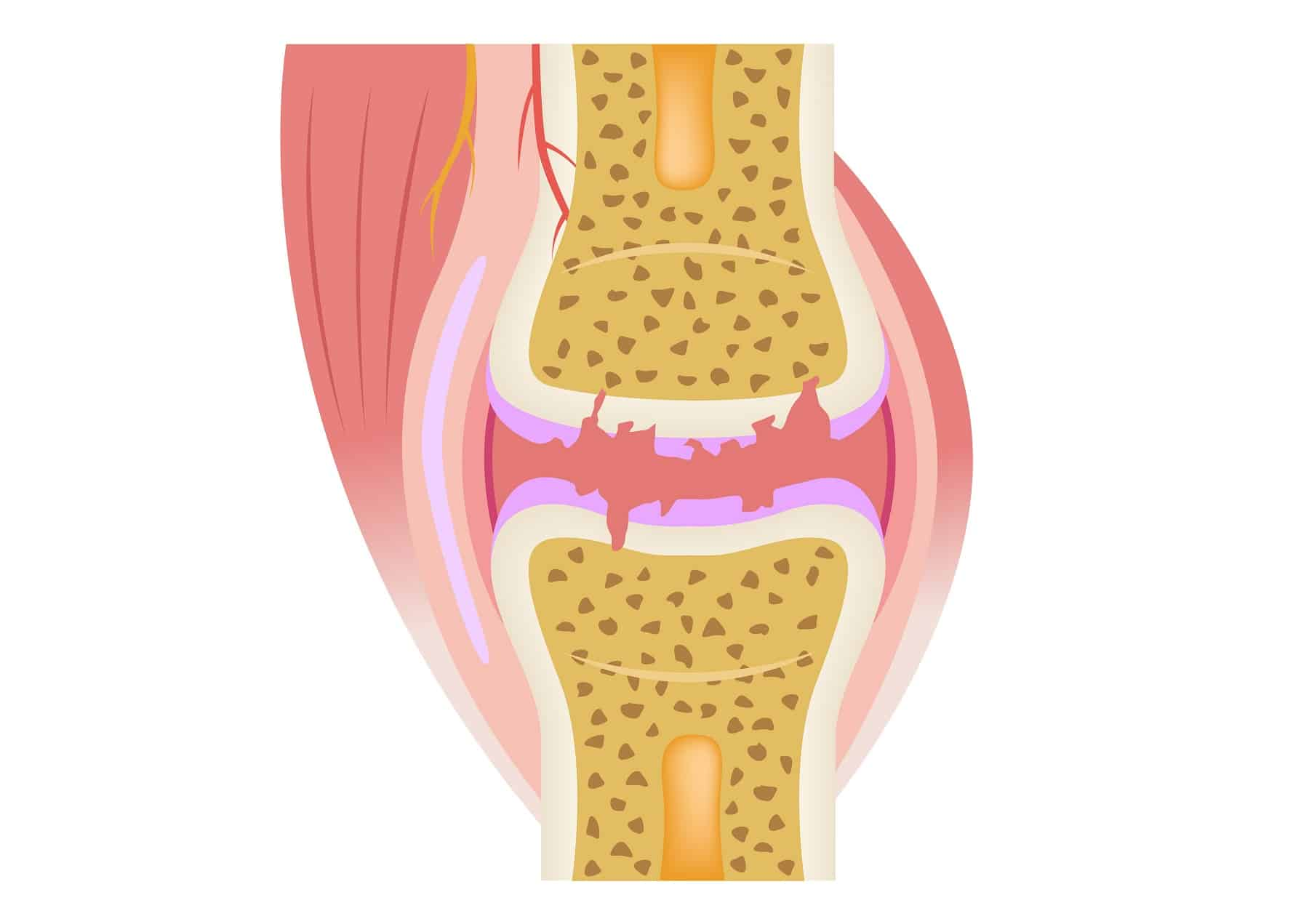 3 Natural Ways to Improve Symptoms From Painful Osteoarthritis